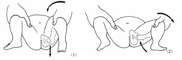 幼儿髋骨结构