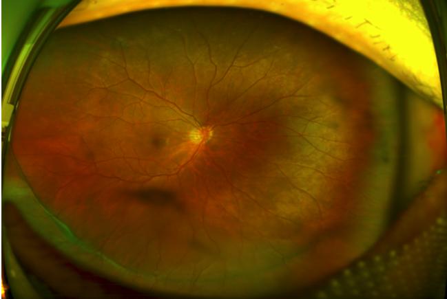 毛先生术后眼底广角照相图-近视手术前检查竟发现视网膜脱离 幸而在
