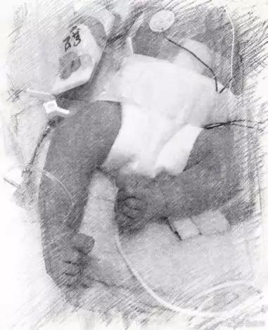 侯佩岑宣布已产下二胎,因宝宝患有此病提前剖腹产