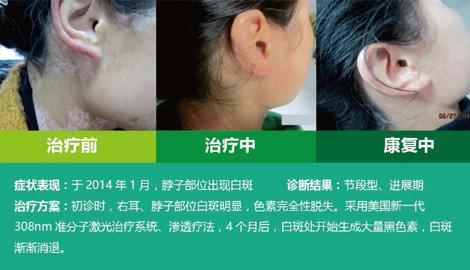 脖子上白斑治疗对比图