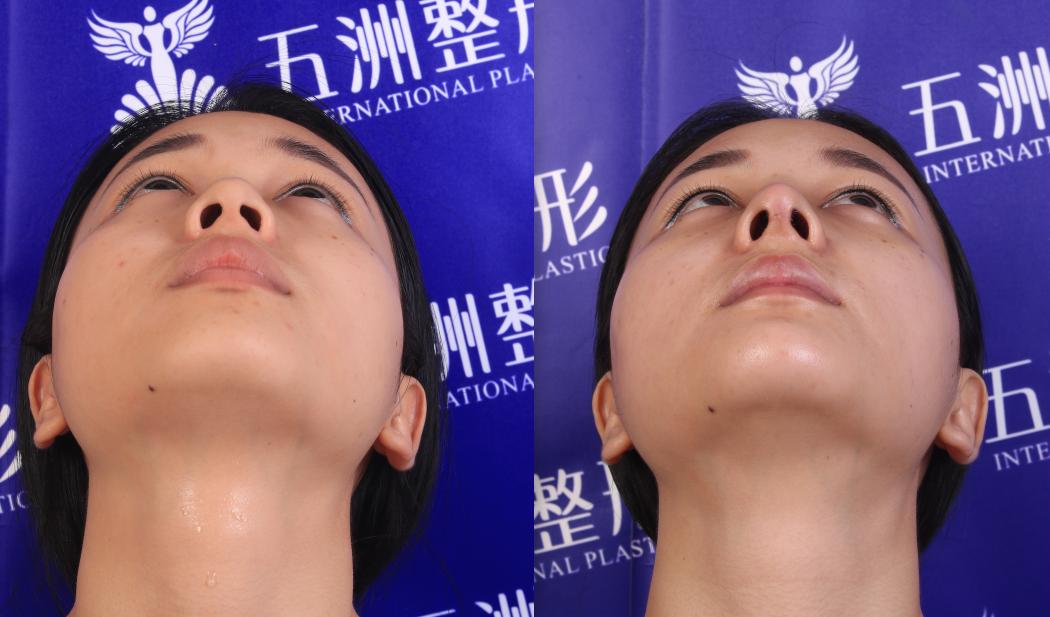 五洲整形医院面诊课堂:混血鼻的关键是鼻尖,翘起来的鼻尖更具美感