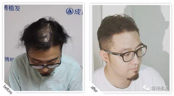 脱发怎么办?秃顶怎么办?加微信zfys89