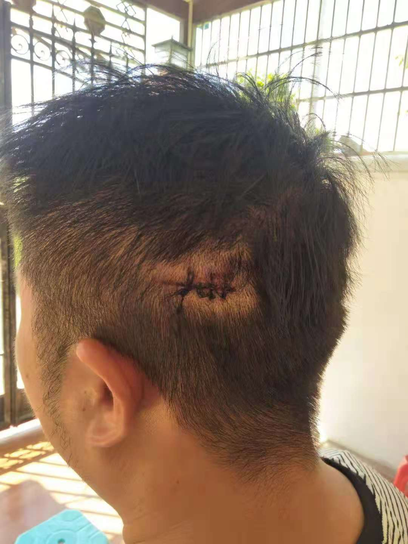 海南万宁:游客光天化日之下遭殴打 凶手为何能逍遥法外?