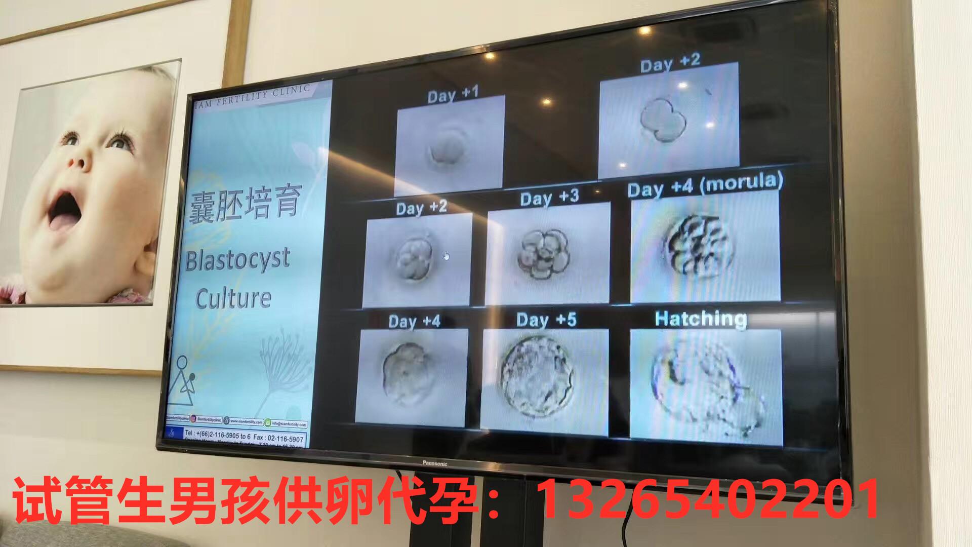 好运健康好运健康泰国试管:医生说胚胎很好,为什么还是不成功呢?  胚胎,移植,试管婴儿,患者,阶段 泰国试管移植