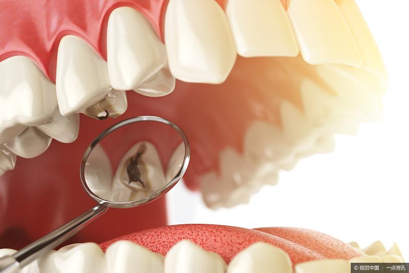牙齿健康:牙龈萎缩,有没有什么方法能缓解?插图