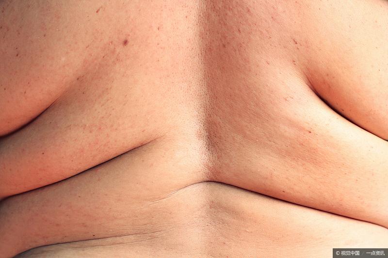 肥胖会给身体带来哪些危害?这4个后果,要提前知道插图(2)