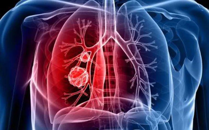 贝壳创始人左晖因肺癌去世!肺癌病情进展期,这些症状一定要注意