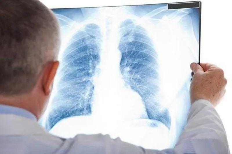 癌症患者出现这些异样的疼痛感觉,很可能是骨转移了,要高度警惕