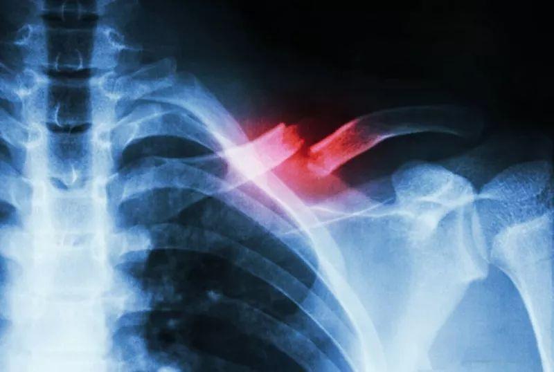 癌症骨转移,究竟是病情到了何种地步,无法控制了?中医这么看