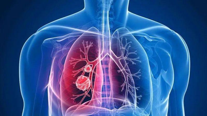 单发肺结节和多发肺结节哪个更严重?如何判断良恶性?一次说清楚