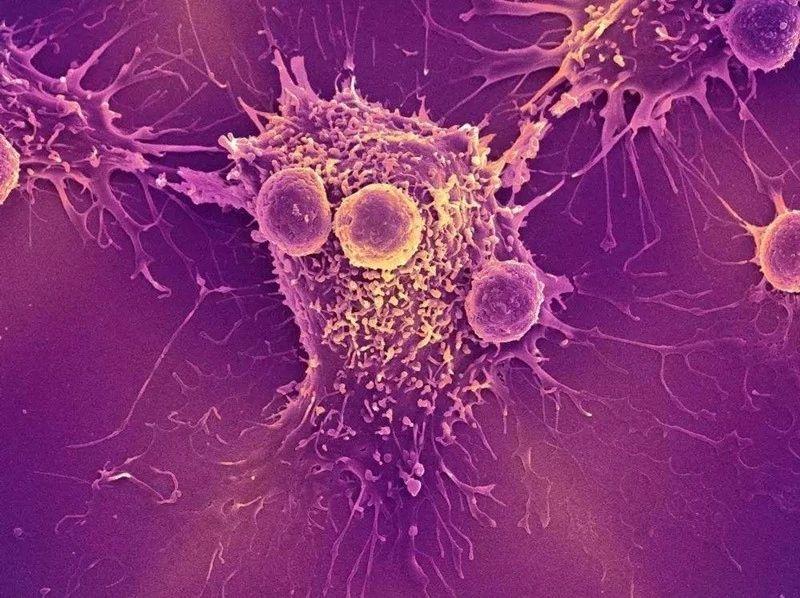 癌前病变,一定会最后变成癌症吗?如何守好最后一道防线